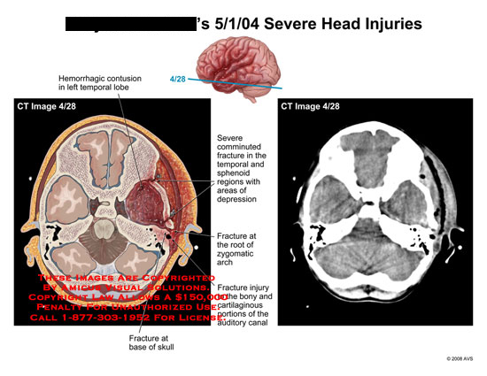 amicus,injury,radiology,CT,brain,axial,skull,fracture,comminuted,hemorrhagic,contusions,swollen,damage