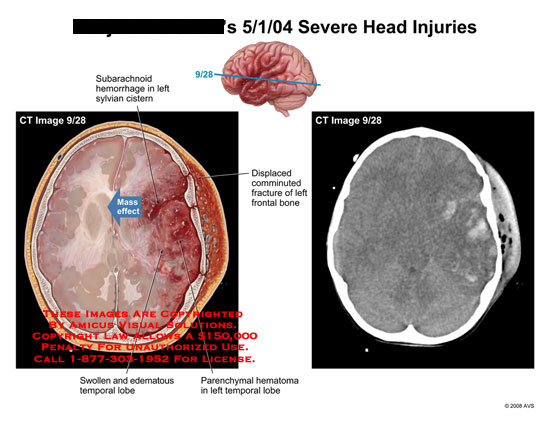 amicus,injury,radiology,CT,brain,axial,skull,fracture,comminuted,hemorrhagic,contusions,swollen,mass,effect,edematous,frontal