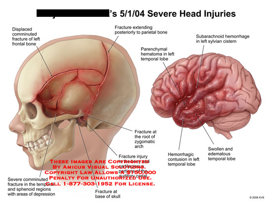 amicus,injury,severe,head,brain,injuries,skull,fractures,impact,child,hemorrhage,contusion,swollen,edematous,comminuted