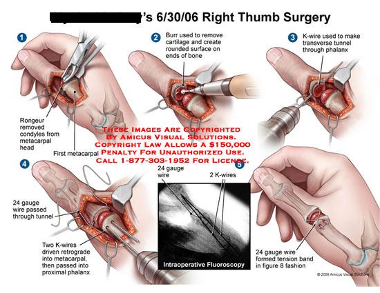 amicus,surgery,thumb,fixation,metacarpal,condyles,removed,cartilage,k-wire,phalanx,tunnel,wire,tension,band,figure