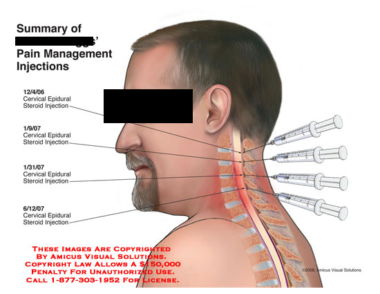 steroid injection sites shoulders
