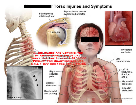 amicus,injury,torso,symptoms,ribs,fractured,broken,shoulder,rotator,cuff,tear,supraspinatus,atelectasis,bruising,contusion,myocardial,pneumothorax,chest