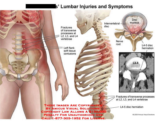 Medical diagrams and resources regarding Lumbar transverse process fractures and disc herniation at L4-5..