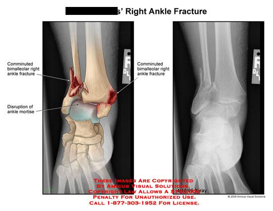 amicus,injury,ankle,fracture,comminuted,bimalleolar,mortise,fibula,tibia,broken