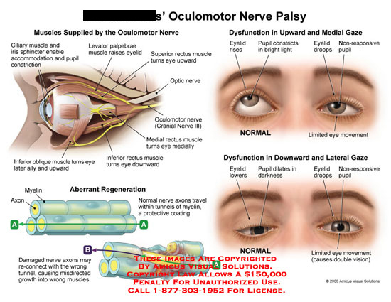 amicus,medical,eye,ocular,oculomotor,nerve,palsy,muscles,palpebrae,rectus,aberrant,regeneration,dysfuntion,gaze,movement,eyelid,pupil,vision,innervation