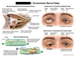 Branches of oculomotor nerve, eye dysfunction, and aberrant nerve regeneration.