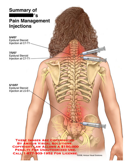 3 epidural steroid injections