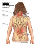 Posterior view of injections into neck and lumbar regions.