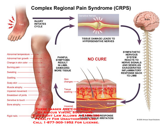Myofascial Pain Syndrome Caused By Car Accident
