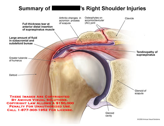 Rotator cuff tears and acromion arthritis.