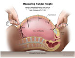Tape measure placed along abdomen to measure funal height.