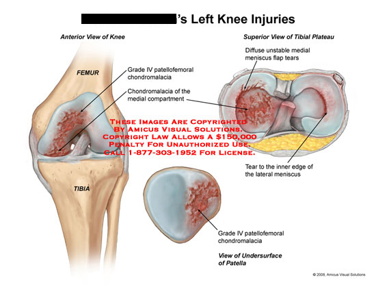 Patellofemoral chondromalacia and unstable medial meniscus.