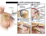 PushLock anchors placed, CA ligament release and AC joint resection.