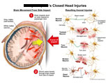 Right frontal impact with axonal twisting, tearing, and breaking.