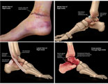 Animated fades of external and internal ankle injuries.