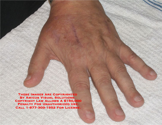 Medical diagrams and resources regarding Photographs of hand scars in various lighting..