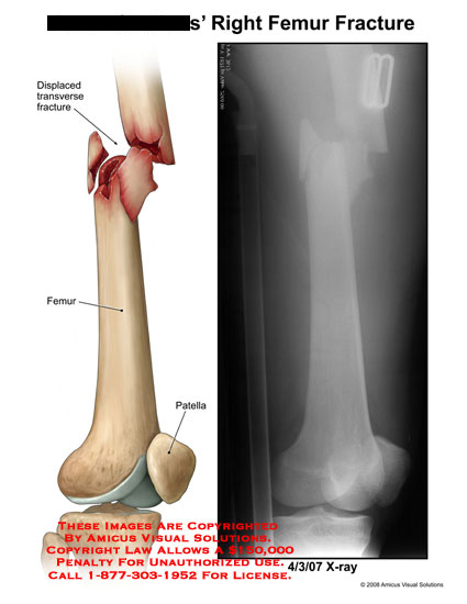 Displaced transverse fracture through femur, with X-ray.
