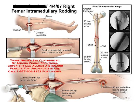 amicus,surgery,femur,intramedullary,rodding,trochanter,reamed,nail,screws,shaft,femoral,x-ray