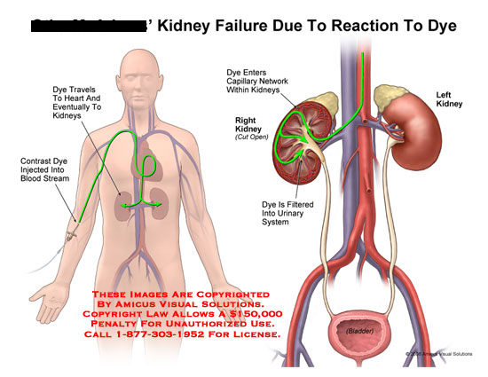 amicus,medical,kidney,failure,reaction,dye,contrast,injection,injected,blood,urinary,system