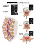 Sagittal and axial views of disc bulges in lumbar spine.