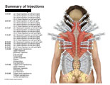 Summary of facet joint and trigger point injections.