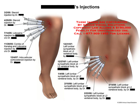 Summary of steroid injections and blocks in knee and lower back.