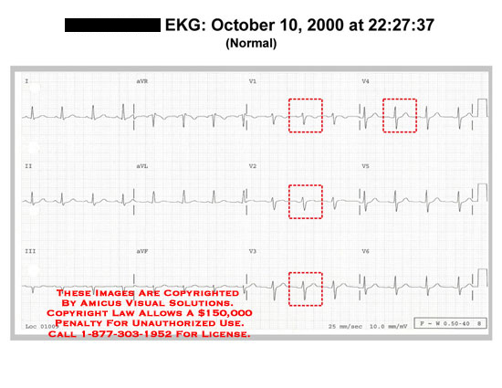 amicus,chart,EKG,ECG,normal