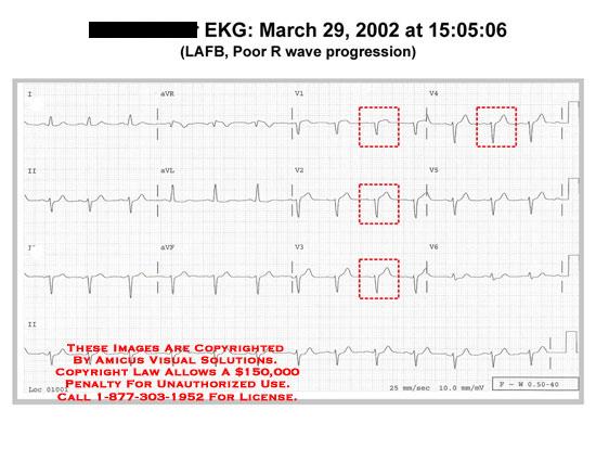 amicus,chart,EKG,ECG,LAFB,poor,wave,progression,abnormal