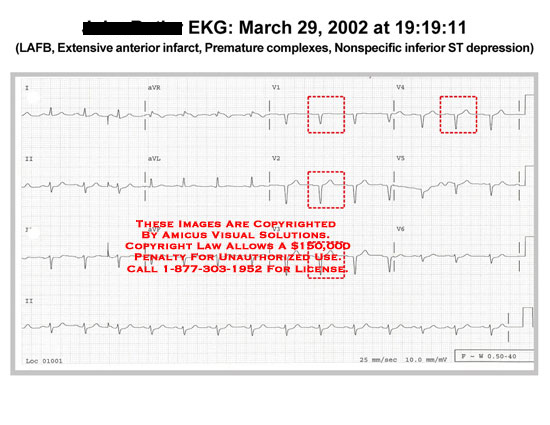 amicus,chart,EKG,ECG,LAFB,infarct,premature,ST,depression,abnormal