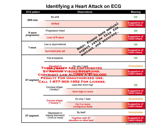 amicus,chart,flowchart,identifying,heart,attack,EKG,ECG,QRS,wave,ST,segment,shape,pattern