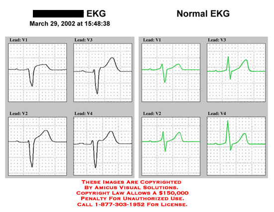 Patient's EKG and normal EKG side by side.