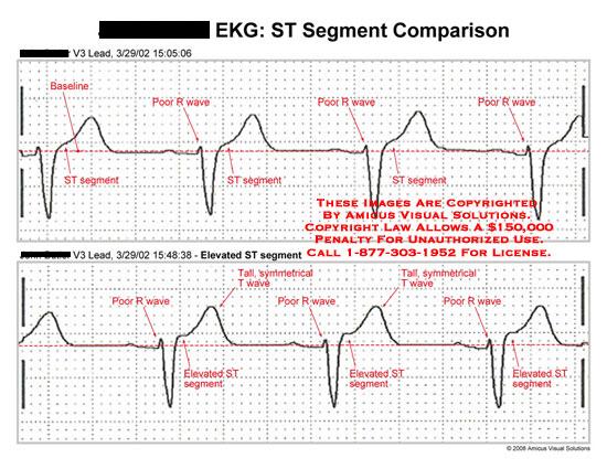 amicus,chart,EKG,ECG,ST,segment,comparison,wave,pattern