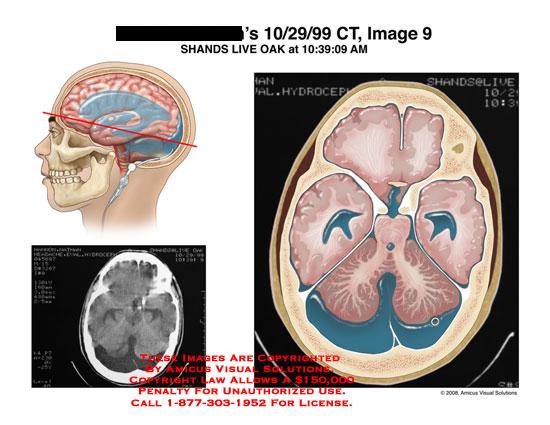 amicus,radiology,CT,brain,fluid,cerebellum,axial,hydrocephalus