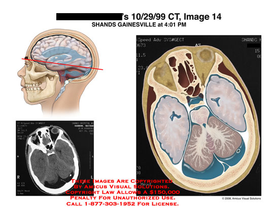 Axial CT showing CSF fluid collection around cerebellum.