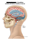 Lateral view of brain with enlarged ventricles and fluid collection.