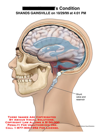 amicus,medical,brain,sulci,effacement,sulcal,cerebral,edema,hypoxia,decompression,shunt,Dandy-Walker,hydrocephalus