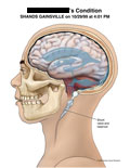 Lateral view of brain with diffuse sulci effacement and shunt.