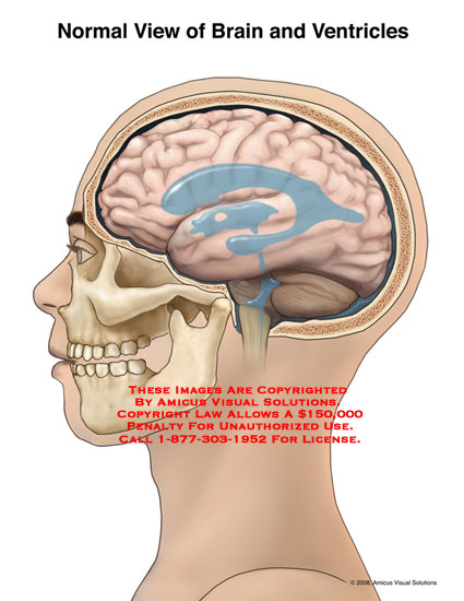 Lateral view of brain with normal ventricles.