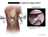 Arthroscopic instruments inserted into knee with excision of medial meniscus.