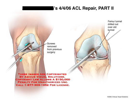 amicus,surgery,knee,ACL,repair,screws,removed,femoral,tunnel,drilled