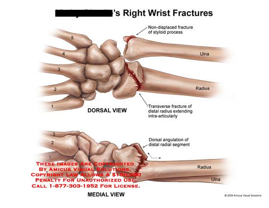 amicus,injury,wrist,ulna,styloid,radius,distal,articular,dorsal,medial,angulation