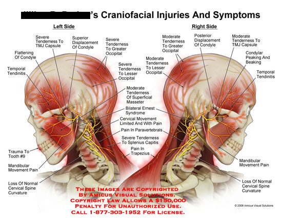 amicus,injury,injuries,symptoms,craniofacial,head,neck,cervical,TMJ,occipital,paravertebrals,tendonitis,temporal,tooth,mandibular,pain,cervical,curvature,tenderness,splenius,capitis,trapezius,ernest,syndrome,masseter,nerves,muscles,muscular