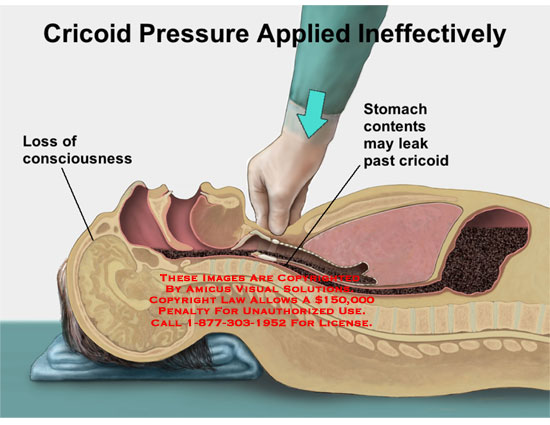 Animation of hand applying cricoid pressure to prevent aspiration.