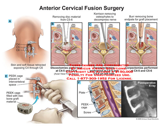 amicus,surgery,cervical,fusion,C4-5,C5-6,discectomy,foraminotomy,corpectomy,disc,material,removed,removal,osteophytes,decompression,burr,PEEK,cage,graft,plate,X-ray