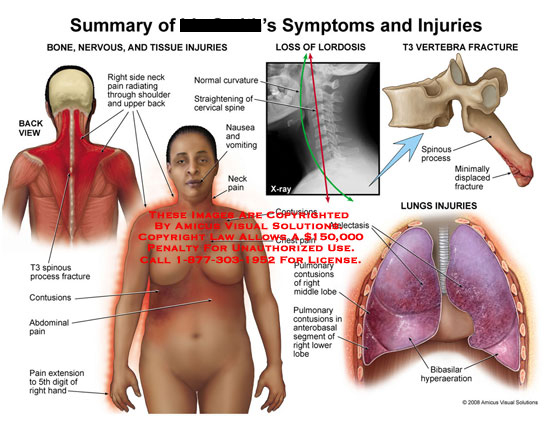 Multiple views of neck, shoulder, abdominal pain and lung problems.