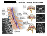 Sagittal and axial views of cervical and thoracic spine disc injuries.