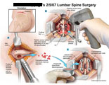 Iliac bone graft harvesting and fusion of L5-S1 with graft and rods.