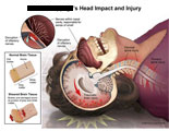 Back of head hitting floor, brain injury, olfactory nerve disruption, and cervical injury.