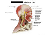 Pain around neck fusion resulting in head and face pain.
