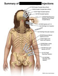 Occipital nerve injections and sacrolumbar joint injections.